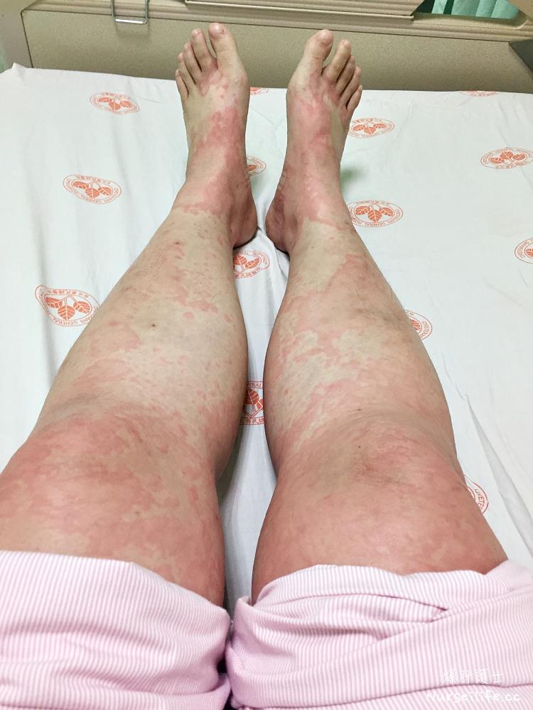 住院記錄|莫名過敏引起全身性蕁麻疹 - nurseilife.cc